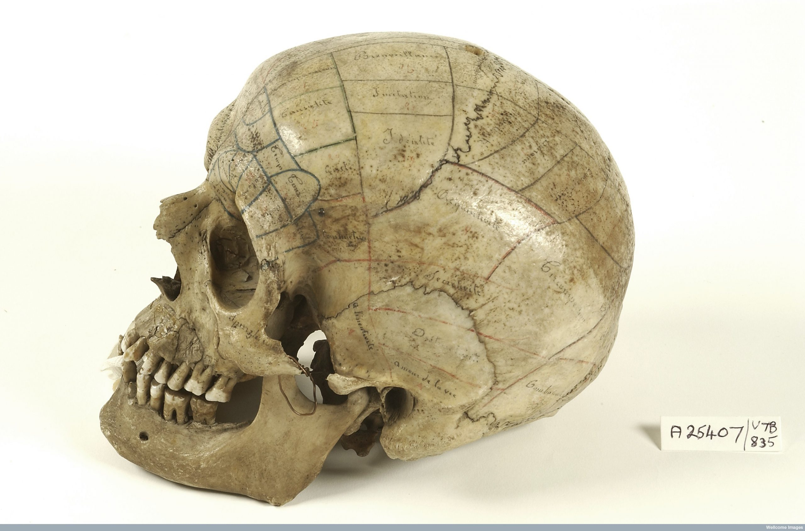 Photo of a human skull