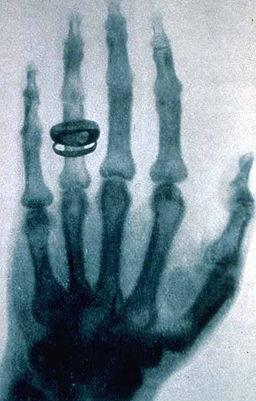Roentgen's X-ray of Kolliker's hand in 1896